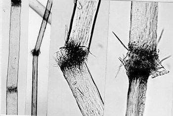 трихорексис нодоза