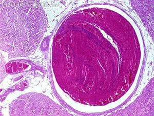 тромботична емболия