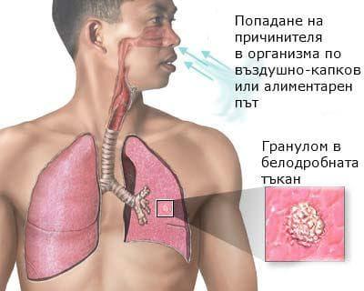 Заразяване с туберкулоза