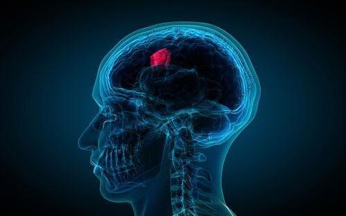 Мозъчен тумор