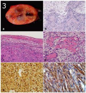 микроскопско изследване на тумори на клетките на нервните обвивки