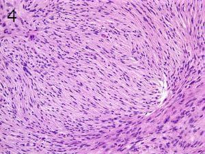 микроскопско изследване на тумори на менингите