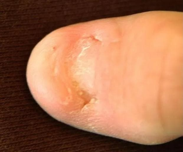 Липса на нокти