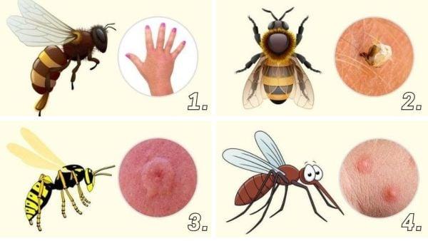 Ухапване от оса, пчела, комар и стършел