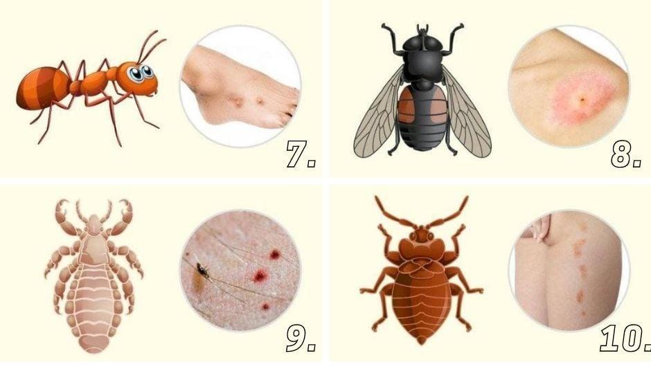Ухапване от муха, въшка, мравка и дървеница