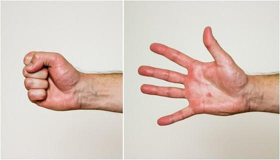 Свиване и разпускане на пръстите на ръката