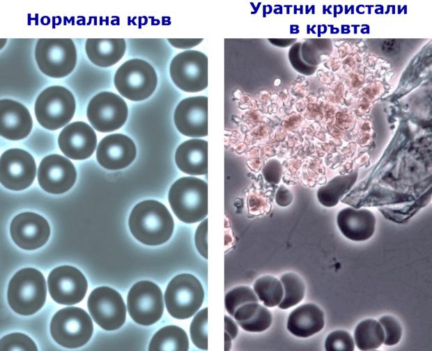 Уратни кристали в кръвта