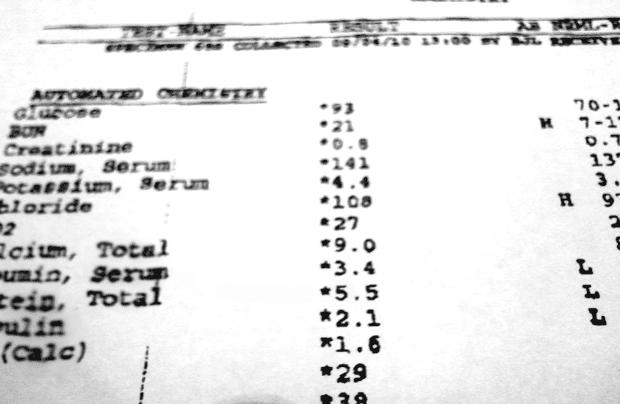 Резултати от изследването на урея в кръвта