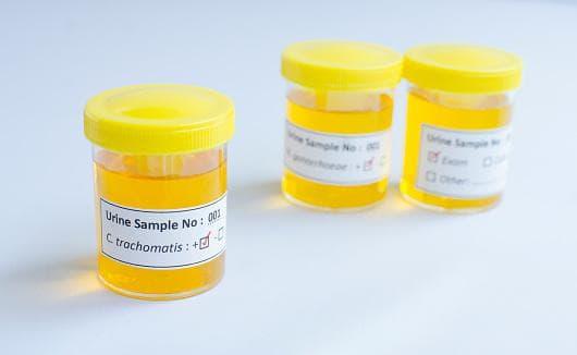 Изследване на урина