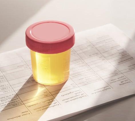 Изследване на магнезий в урина: