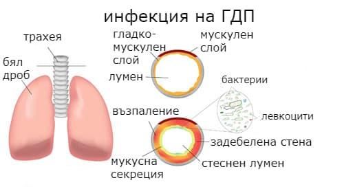 Патофизиология на възпалението