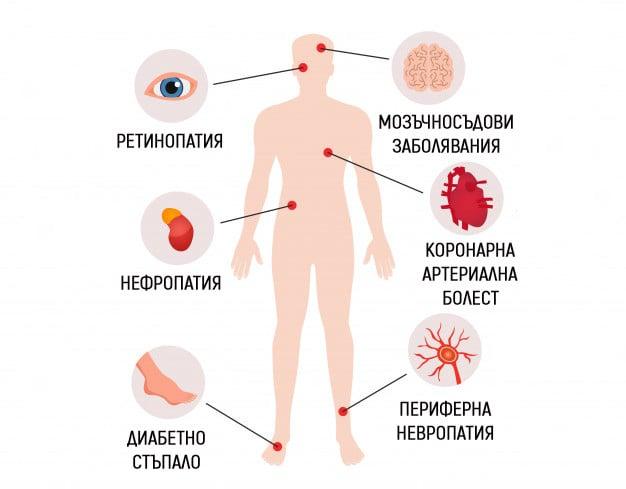 Усложнения на диабет тип 2