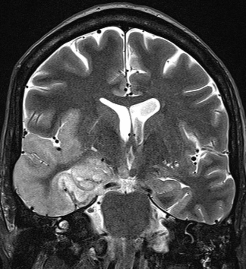 Скенер на главен мозък