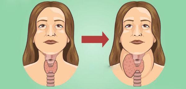 Усложнения при субклиничен хипотиреоидизъм