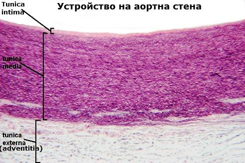 Устройство на аортна стена