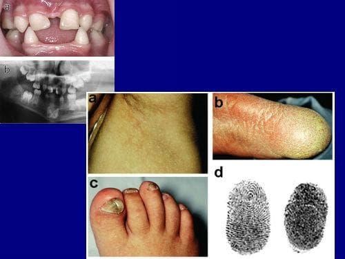 дерматопатия пигментоза ретикуларис