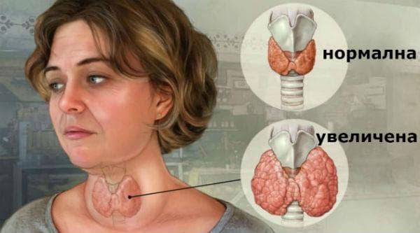 Увеличени размери на щитовидната жлеза - гуша