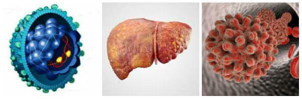 Увреждане на черния дроб от HBV