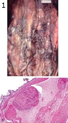 микроскопско изследване на варици на хранопровода