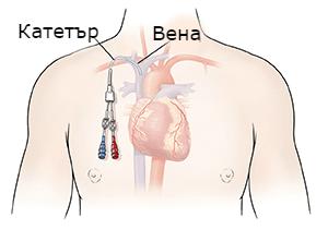 централно венозно устройство