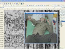 видео ЕЕГ