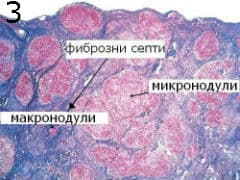 микроскопско изследване на видове цироза