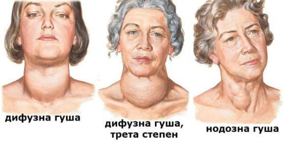 Видове гуша (дифузна, нодозна)
