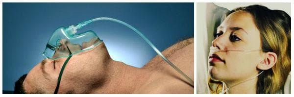 Видове лечение с кислород: лицева маска, назална канюла (маска за нос)