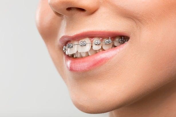 Видове зъбни скоби и показания за приложение