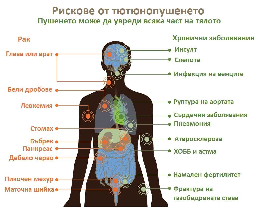 Вреди от тютюнопушенето
