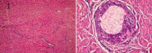микроскопско изследване на вагинална атрезия