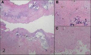 микроскопско изследване на овариални кисти
