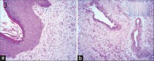 вродени пороци в развитието на нервната система