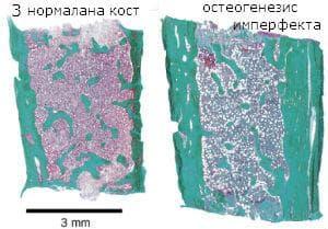 микроскопско изследване на остеогенезис имперфекта