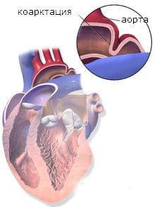вродени пороци на сърдечно-съдовата система