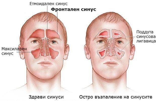 възпаление на фронталния синус