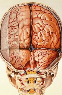 Лекарствен асептичен менингит