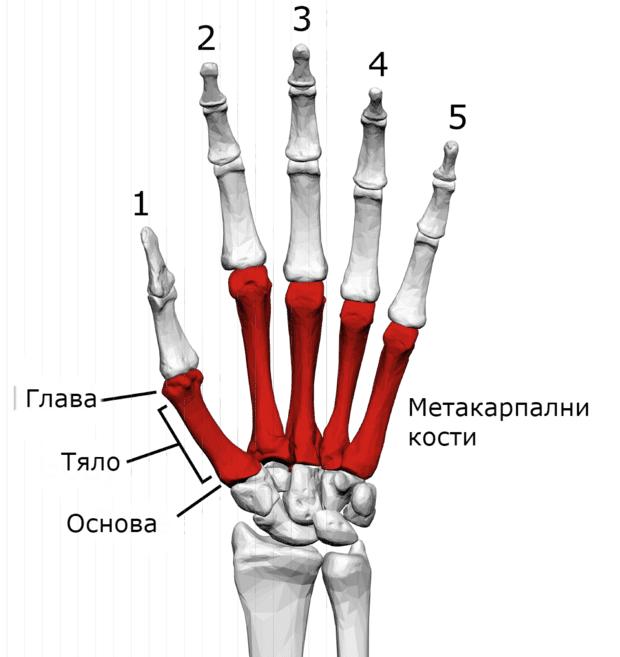 ювенилна остеохондроза на ръката