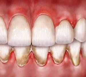 Зъбен камък и зъбна плака