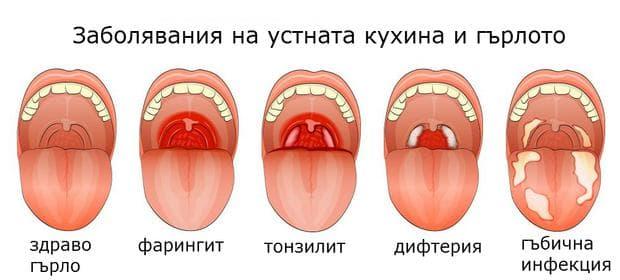 заболявания на устна кухина и фаринкс