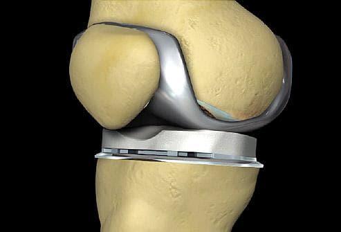 Изкуствена колянна става