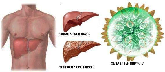 Засягане на черния дроб от HCV