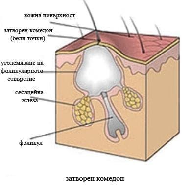 Основные невоспалительные поражения кожи