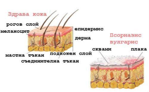 Здрава кожа и псориазис вулгарис