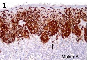 микроскопско изследване на злокачествени меланинообразуващи тумори