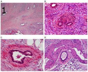 микроскопско изследване на аденокарцином на панкреаса