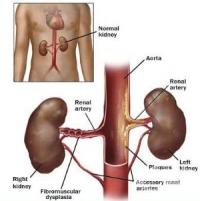 вторични причини за хипертония
