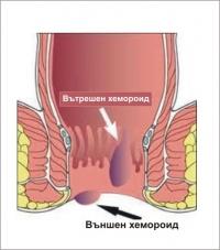 видове хемороиди