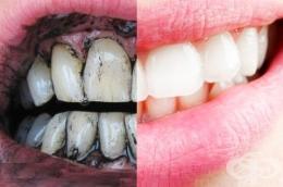 Как да избелим зъбите си с активен въглен? - изображение
