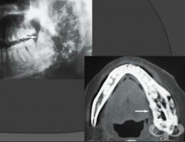 остеомиелит на долна челюст